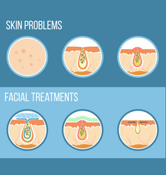 facial treatment infographic vector image vector image