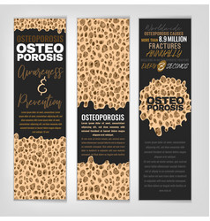 Osteoporosis banners set vector
