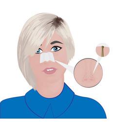 Blackheads on nose treatment vector