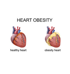 Obesity heart vector