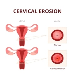 Cervical erosion schematic vector