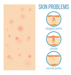 top view of problem skin vector image vector image