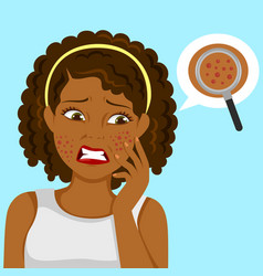 Black girl with pimples vector