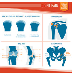 Osteoarthritis and rheumatism joint pain medical vector