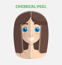 Chemical peel vector
