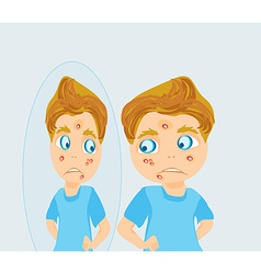 Boy in puberty with acne vector