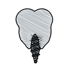 Color crayon stripe cartoon dental implant icon vector