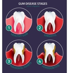 Teeth infographic gum disease stages vector