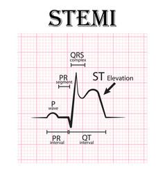 Ecg of st elevation myocardial infarction stemi vector