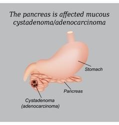 Pancreas mucous cystadenoma adenocarcinoma vector