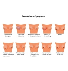 Symptoms of breast cancer infographics vector