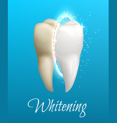 teeth whitening concept with clean and dirty tooth vector image