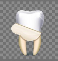 Tooth veneer whitening dental technician vector