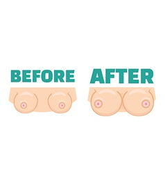 Breast augmentation before and after concept vector