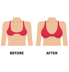 Female breast before and after plastic surgery vector