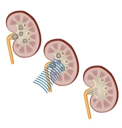 Shock waves to break a kidney stone vector image vector image