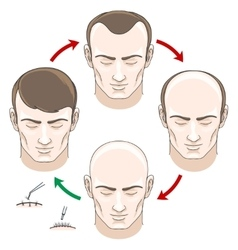 Stages of hair loss treatment and transplantation vector