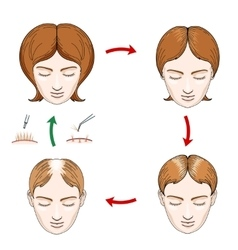 Female hair loss and transplantation icons vector