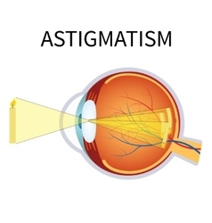 astigmatism vector image vector image