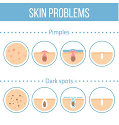 skin problems icons vector image