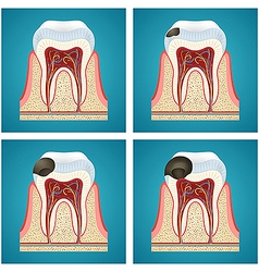 Stages progress caries on human teeth vector
