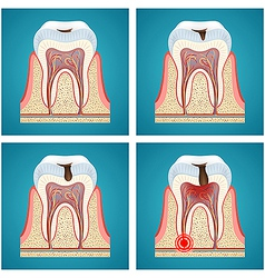Stages progress dental caries and toothache vector