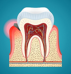 Start disease gum and caries on human teeth vector