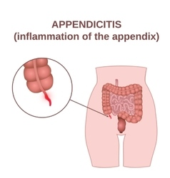 Inflammation of the appendix vector