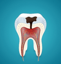 Teeth caries in cutaway vector