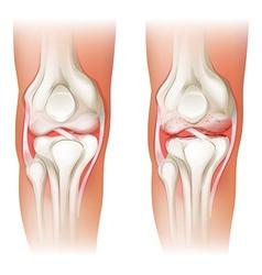 Human knee arthritis vector