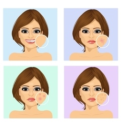 Young girl with facial skin problem vector image vector image