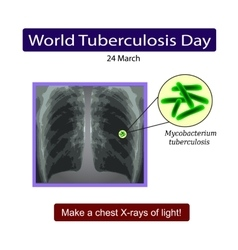 X-rays of light diagnosis of tuberculosis vector