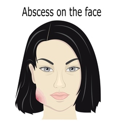 Abscess on the face vector
