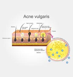 Acne vulgaris vector