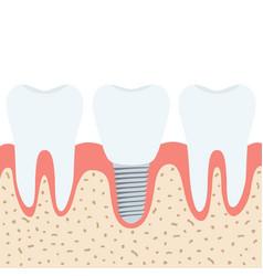 Medical denture human teeth dentist implant in vector