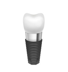 Metal assembled tooth implant vector