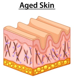 Close up diagram of aged skin vector