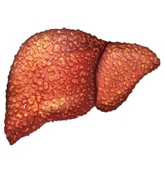 Liver patients with hepatitis liver is sick vector