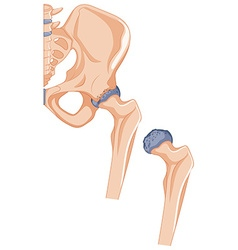 Close up picture of hip bones vector