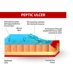 Helicobacter pylori and ulcers disease vector