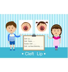 cleft lip vector image vector image