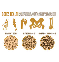 osteoporosis stages image vector image