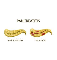 Pancreas healthy and pancreatitis vector