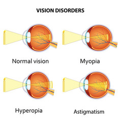 Common vision disorders vector