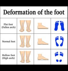 Deformation of the foot vector