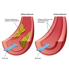 Atherosclerosis and arteriosclerosis vector