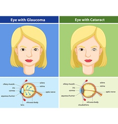 Comparison chart of eyes with and without glaucoma vector