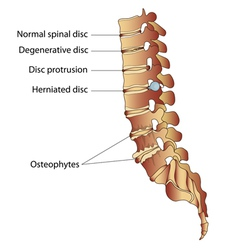 Spinal diseases vector