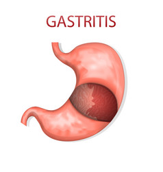 Stomach gastritis vector
