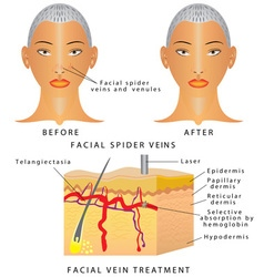 Veins on face vector image